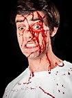 Blutspray
