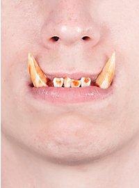Dents d'orque Dental FX