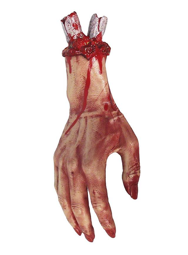 Amputierte Hand
