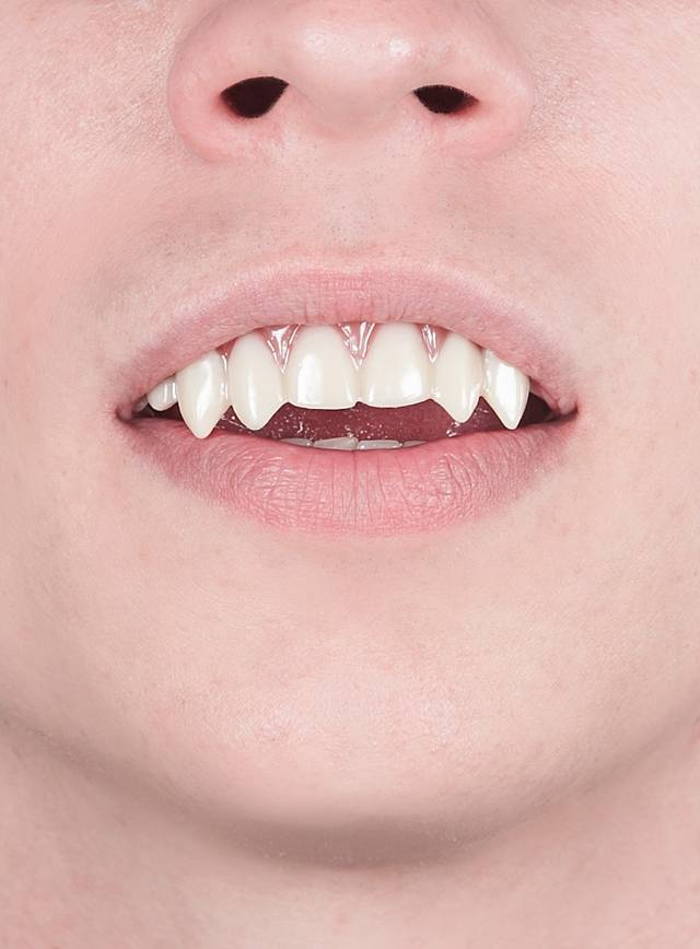Vampir Zähne Dental FX
