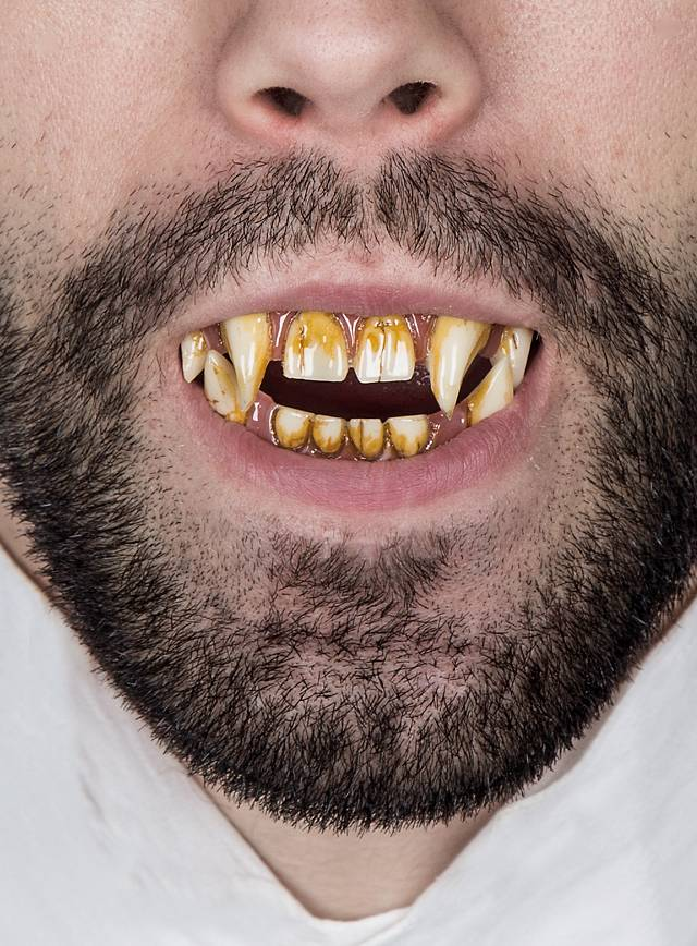 Dents de Mr. Hyde Dental FX