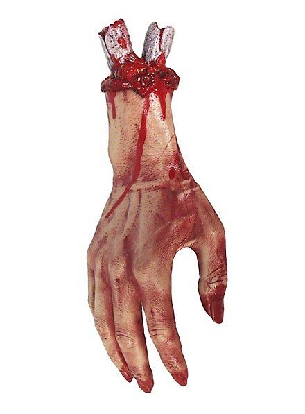 Main amputée