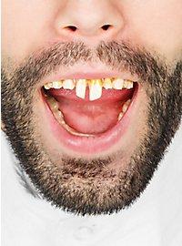 Dental FX Neanderthal Teeth