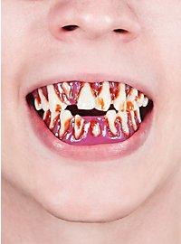 Dental FX Zombie Teeth