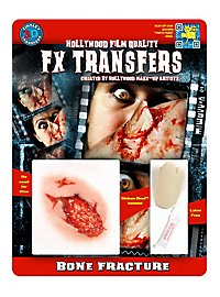 Knochenbruch 3D FX Transfers