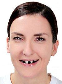 Tooth Enamel black